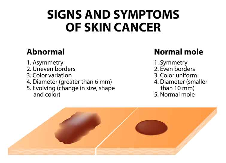 Photos of Skin Cancer Symptoms Are Great Tools
