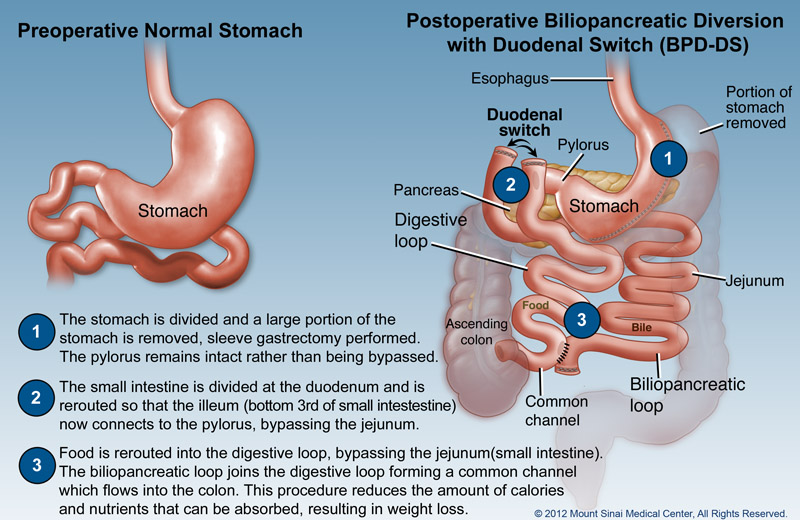Biliopancreatic Diversion With Duodenal Switch (BPD/DS ...