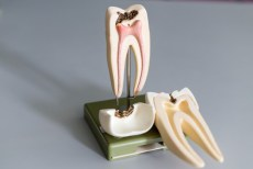 model of root canal