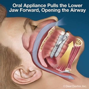 oral appliance diagram
