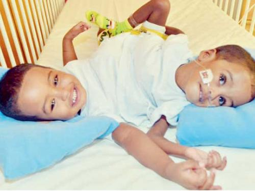 Sudanese conjoined twins Mamdooh and Mahmood before their surgery. — Okaz photo