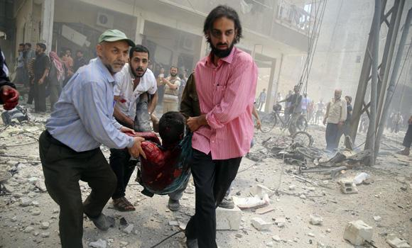Men carry an injured child after what activists claim was a car explosion in a market in central Douma in the eastern al-Ghouta, near Damascus, on Saturday. Dozens of people were wounded in the blast.