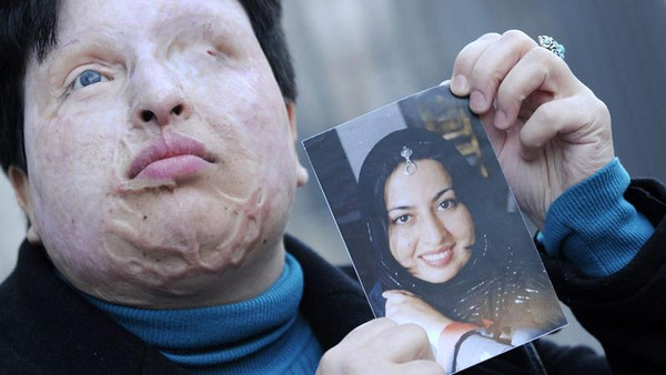 Victim Ameneh Bahrami before and after she was attacked with acid.
