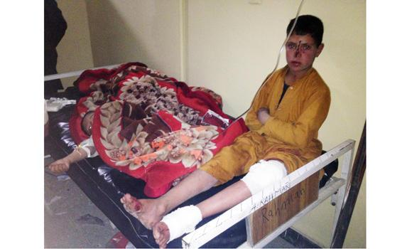 Afghan children are treated at Paktika hospital after a suicide attack in the Yahyakhail district of Paktika province east of Kabul, Afghanistan, on Sunday.