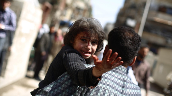 A man carries a wounded child in the rebel-held area of Douma, east of the capital Damascus, following reported air strikes by regime forces on March 15, 2015.