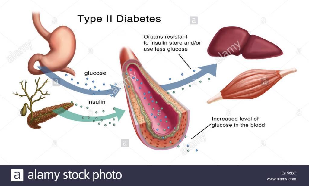 memahami bacaan gula dalam darah