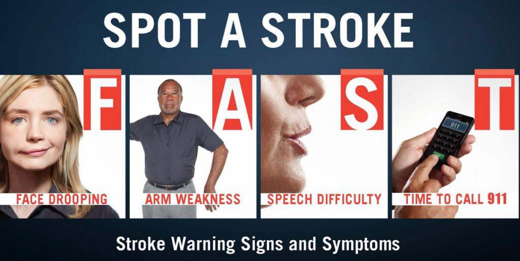 tanda-tanda minor stroke