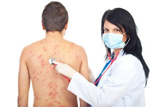 cara merawat tona kulit tak sekata (melasma)