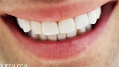 Photo of وصفة تبييض الاسنان