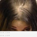 شعري يتساقط بسبب الرجيم كيف امنع ذلك ؟