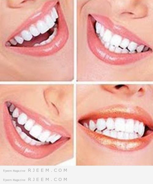 الطريقة الصحيحة لغسل الاسنان