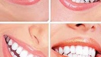 Photo of الطريقة الصحيحة لغسل الاسنان