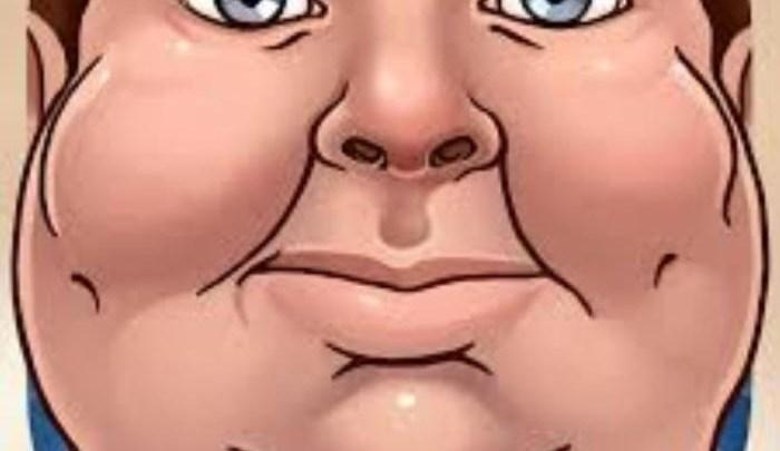 كيف اتخلص من سمنة الوجه دون شحوب و تعب