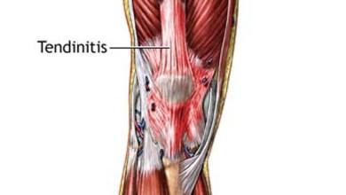 كيف تخفف من آلام التهاب الأوتار؟