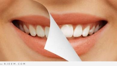 Photo of تبييض الاسنان في المنزل