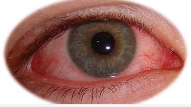 Photo of رمد العيون – الوقاية من مرض رمد العيون
