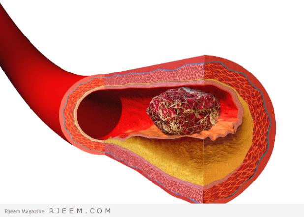 تخثر الدم - اسباب وعلاج فرط الخثورية