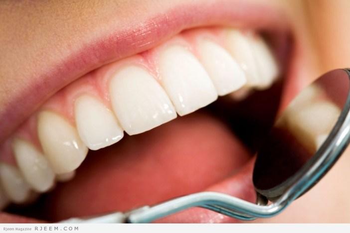 تسوس الاسنان - اسباب تسوس الاسنان وطرق العلاج والوقاية منه