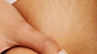 Photo of 7 خلطات لعلاج التشققات الجلدية