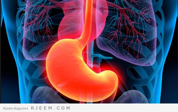 12 وصفة طبيعية لعلاج قرحه المعدة