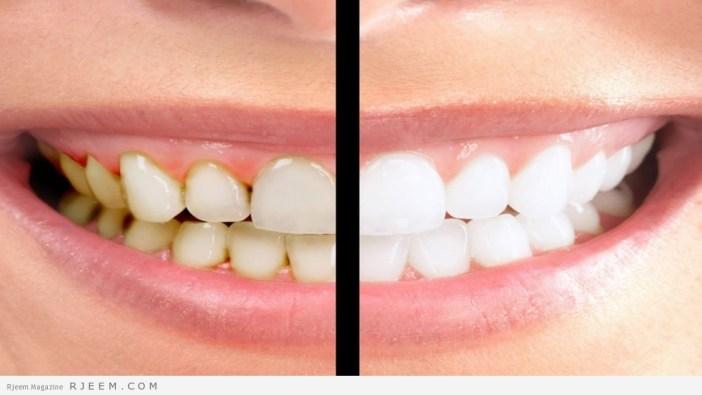 10 نصائح للحصول على اسنان بيضاء
