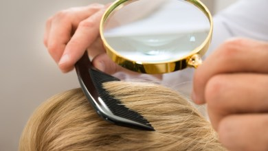 Photo of 8 علاجات منزلية لعلاج قشرة الرأس
