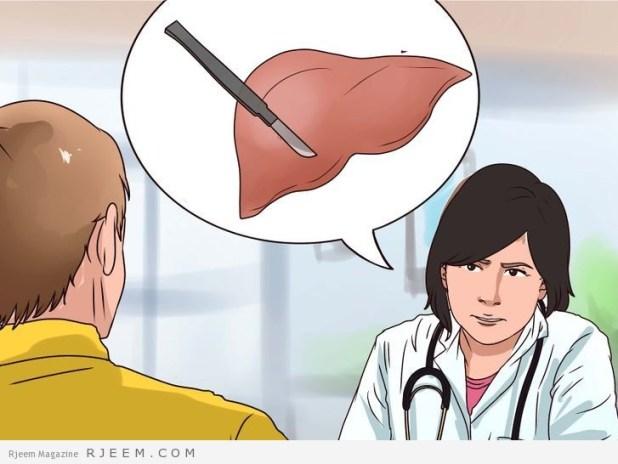 التهاب الكبد الوبائي A اسباب وعلاج