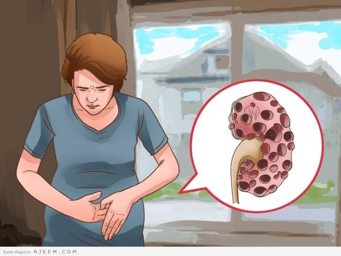 7 علامات للاصابه بامراض الكلى