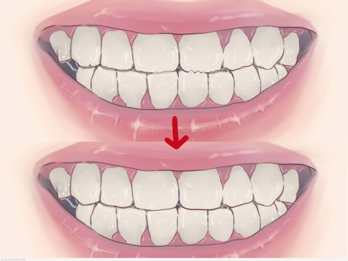 6 طرق طبيعية لمنع تسوس الاسنان