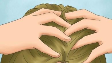 Photo of 10 علاجات طبيعية للتخلص من حكه الرأس