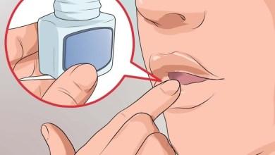 Photo of 14 وصفة طبيعية لعلاج التهاب زوايا الشفاه