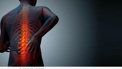 Photo of ما هي اعراض هشاشة العظام وعلاجه