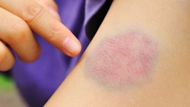 Photo of أسباب ظهور الكدمات الزرقاء في الجسم