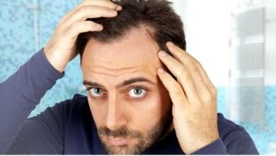 Photo of ما هو مرض سعفة الرأس ؟ وما هو علاجه ؟
