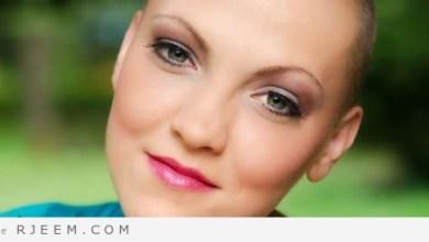 Photo of العلاج الكيميائي وتساقط الشعر: ما تتوقعه أثناء العلاج