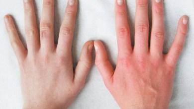 Photo of مكونات طبيعية فعالة لتسمين اليدين