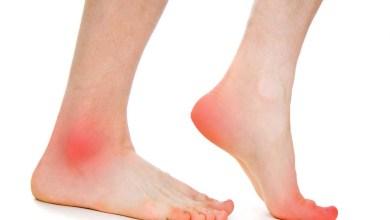 Photo of العلاجات المنزلية لعلاج ألم القدمين