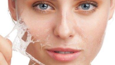 Photo of علاج حساسية الوجه بعد التقشير