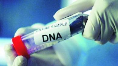 Photo of تحليل DNA ما هو و آلية عمله و كيف يمكن إجراءه و مدة ظهور نتيجة التحليل