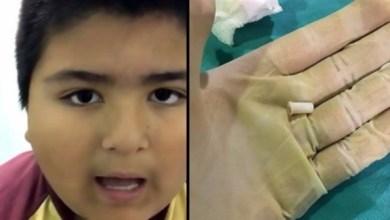 Photo of بالفيديو: طفل يصدر صوتاً غريباً عندما يتنفس بعدما ابتلع صفارة