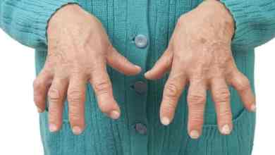 Photo of التهاب المفاصل الرثوي
