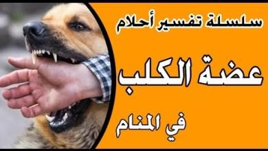 Photo of تفسير حلم عضة الكلب في المنام