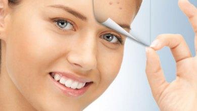Photo of طريقة إزالة والتخلص حبوب الوجه بسرعة
