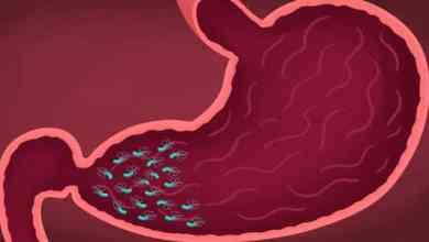 Photo of أعراض التهاب جدار المعدة