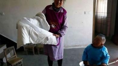 Photo of ثلاثيني يعيش بجسد طفل بعمر عامين بسبب حالة نادرة