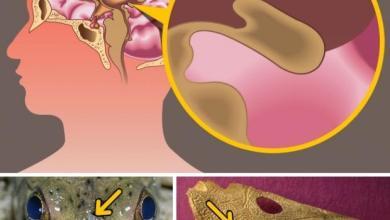 Photo of أشياء لا تعرف سر وجودها في جسمك.. منها حلمات الصدر عند الرجال