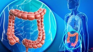 Photo of علاج التهاب القولون