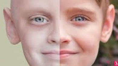 Photo of دراسة: تزايد البشر الذين يتجاوزون إصابتهم بالسرطان