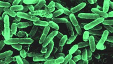 Photo of مرض الدفتيريا
