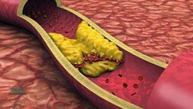 Photo of الدهون الثلاثية واضرارها على الصحة وطرق الوقاية منها